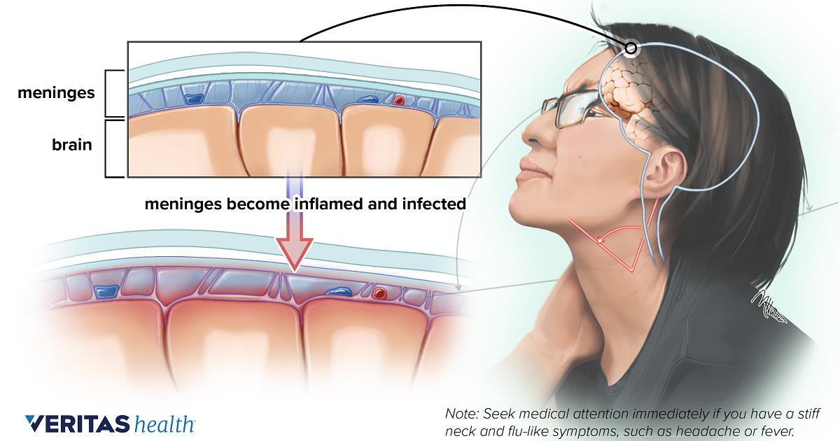 Meningitis Back Pain And Neck Pain Medical Glossary