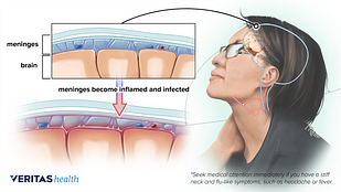 Medical illustration of swollen infected meninges