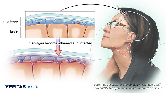 Meningitis illustration