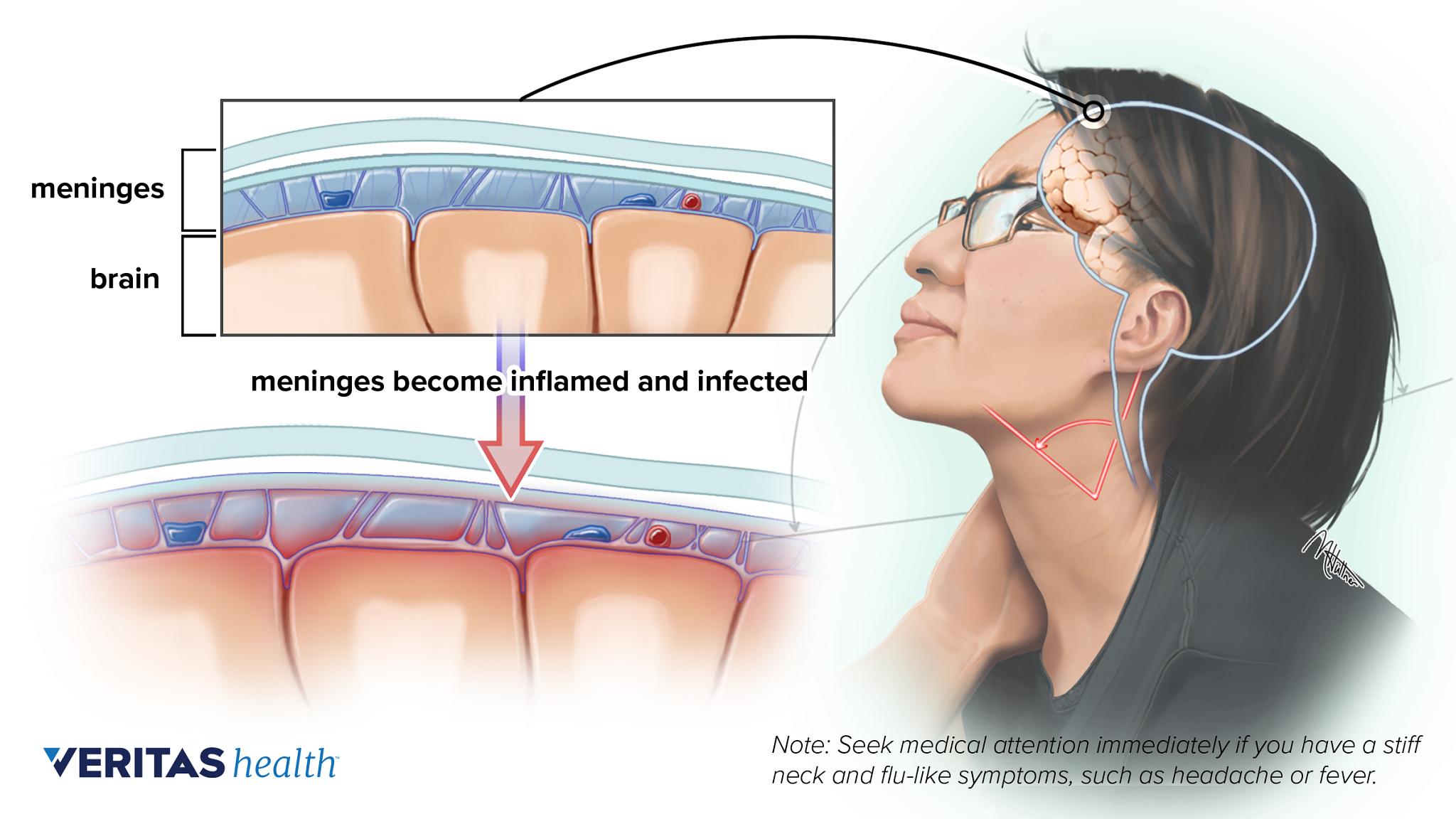 Sharp pain in neck under chin