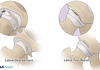 Medical illustration of hip labral debridement and tear repair