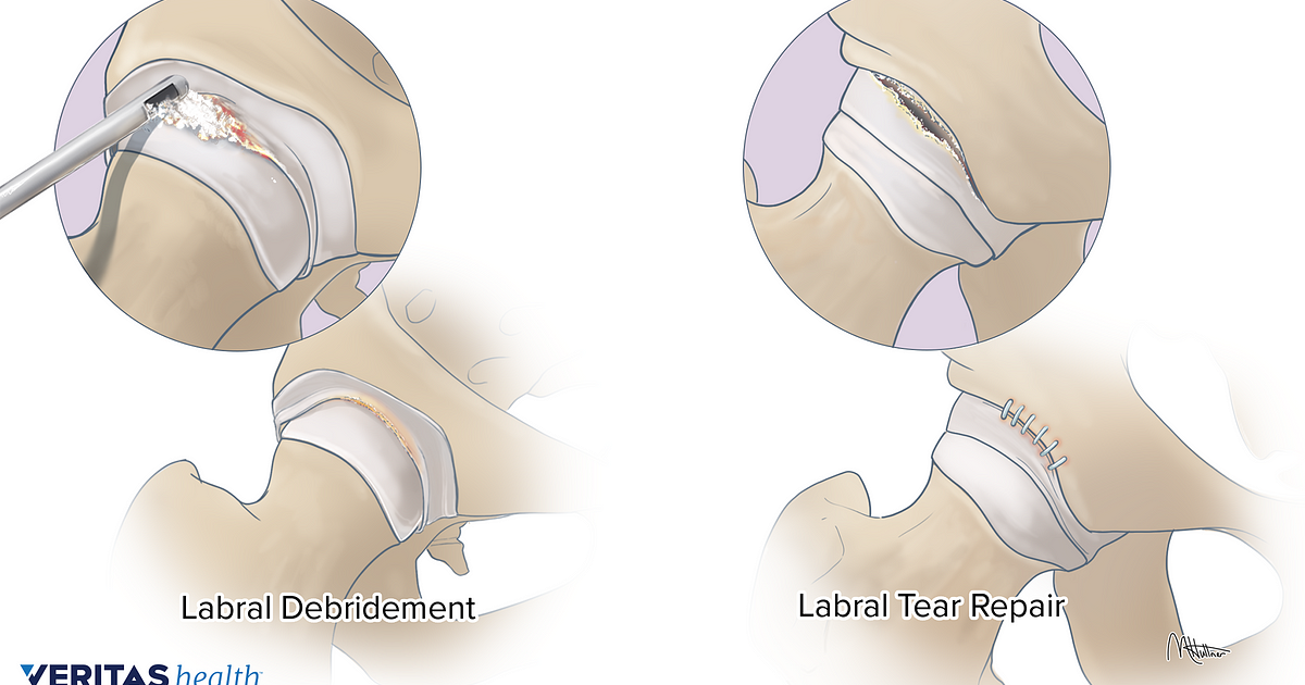 Surgery for Repairing a Torn Hip Labrum