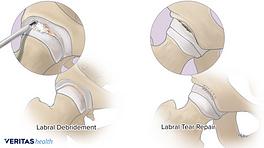 Hip labral debridement and tear repair