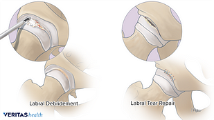 Medical illustration of hip debridement