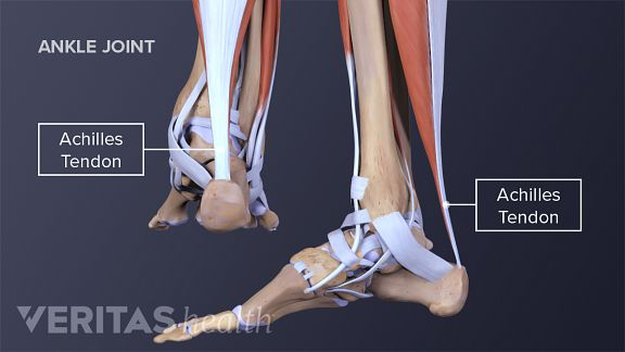 why are achilles tendon injuries so common in athletes
