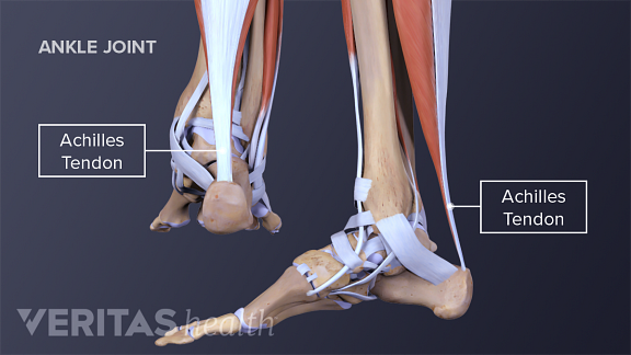 Medial and posterior view of an adult Achilles tendon