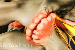 Lumbar Osteoarthritis Video