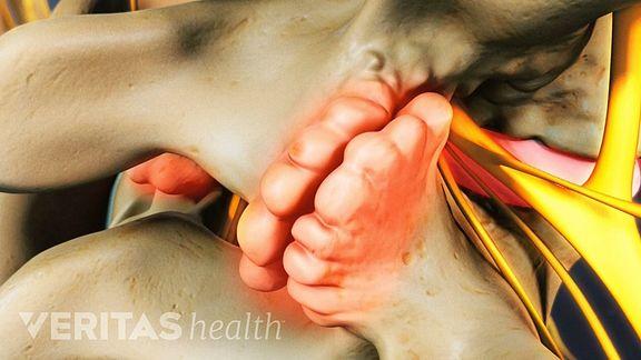 bone spur anatomy