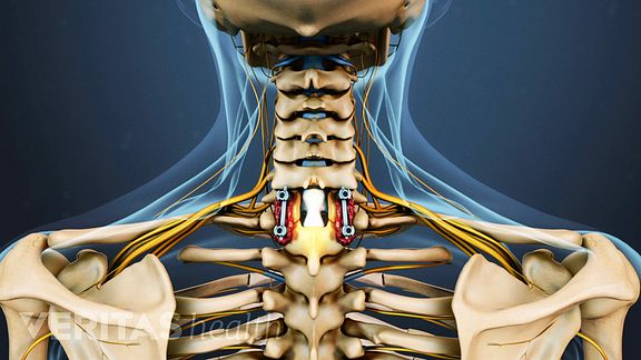 Cervical Laminectomy Fusion