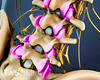 Anterior view of spondylosis in the facet joints of the lumbar spine.