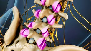 Spondylosis Video