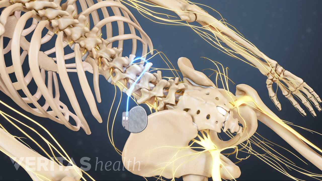 Posterior view of the lower back showing the spinal cord stimulator implement.
