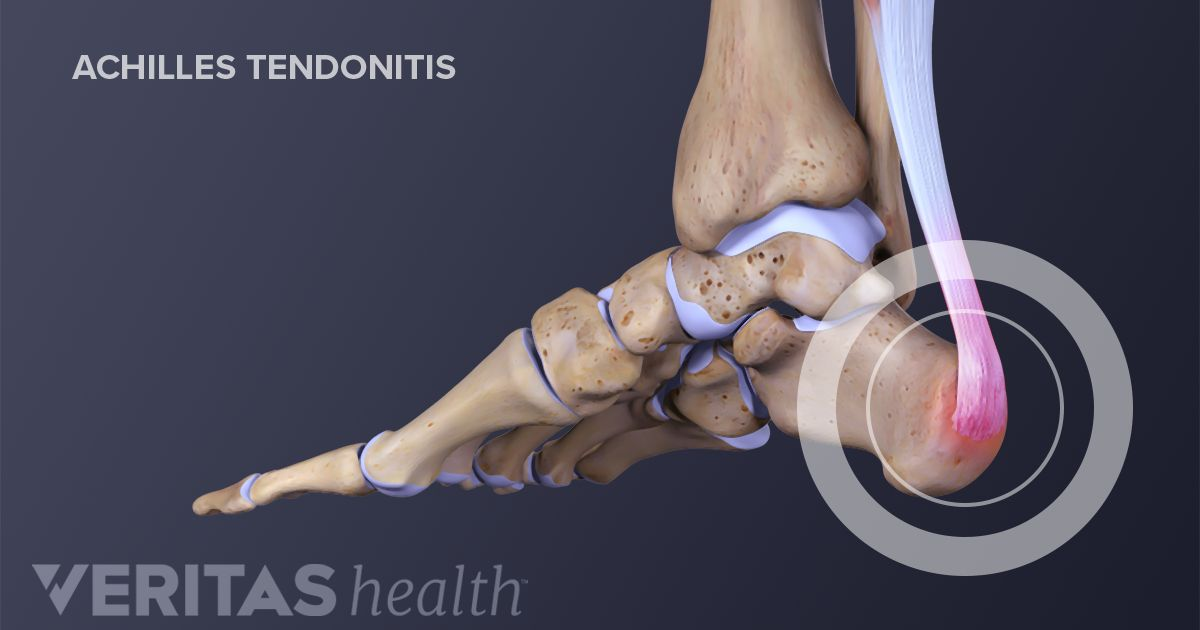 Tendonitis Tendinosis And Tendinopathy Sorting Out The Terms