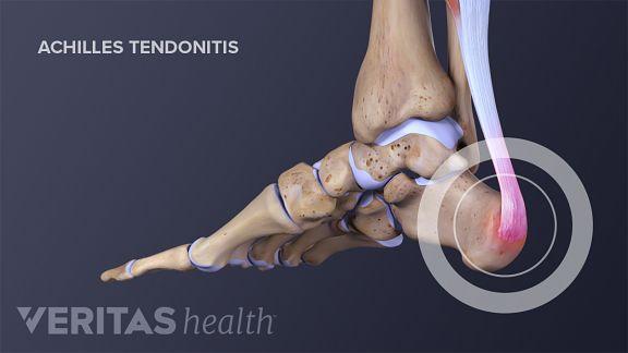 Tendonitis Tendinosis And Tendinopathy Sorting Out The