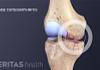 Medical illustration of inflammation in the knee joint