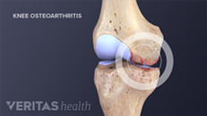 Knee Osteoarthritis Causes