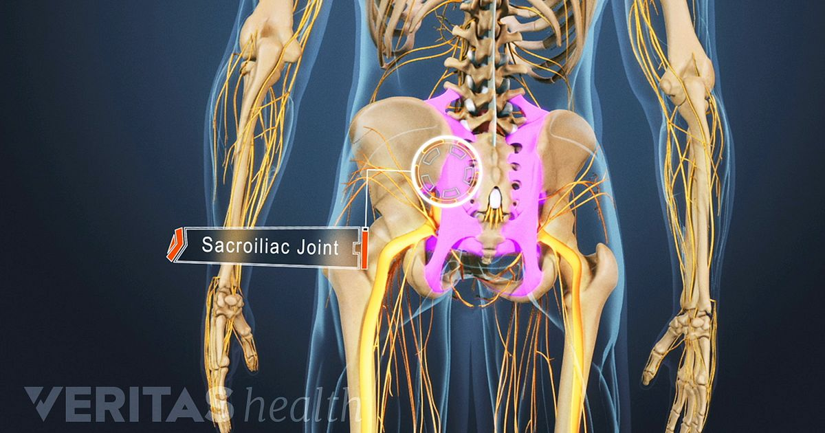 4 Types Of Arthritis That Cause Sacroiliac Joint Pain