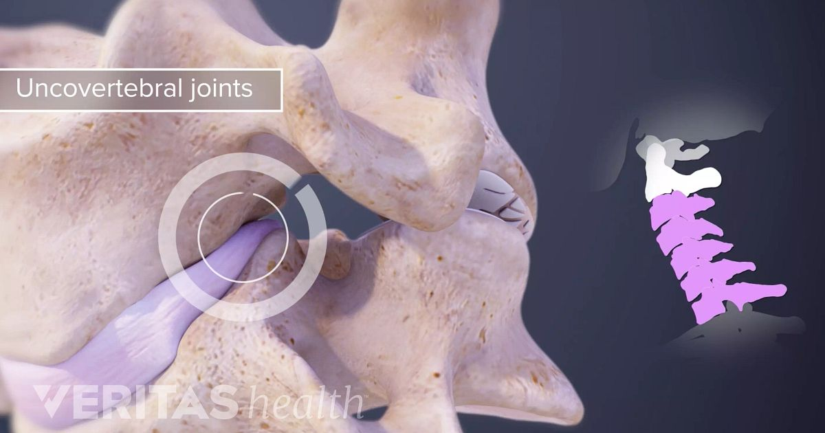Unkovertebralny artroza c4 7 | experttraining.ro