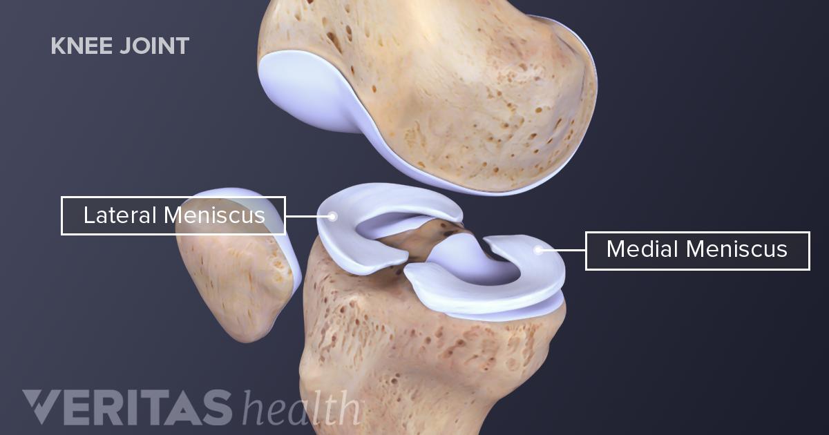 Understanding Meniscus Tears