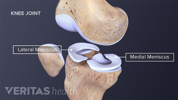Illustration of the lateral and medial menisci