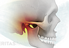 Illustration of an inflamed temporomandibular joint (TMJ)