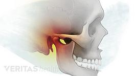 An inflamed temporomandibular joint (TMJ)