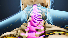 Posterior view of the upper back highlighting the spinal column.