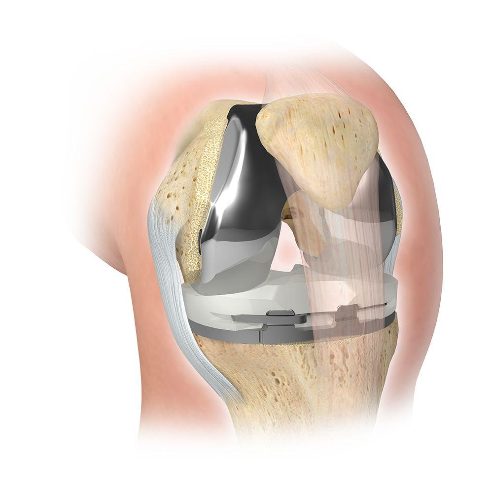 Zimmer Biomet Knee Replacement