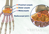 Illustration of proximal, distal, and metacarpal wrist bones.