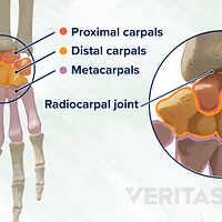 Palmar and dorsal view of the hand and wrist labeling the proximal carpals, distal carpals, metacarpals, and radiocarpal joints.