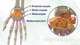 Dorsal view of the proximal, distal, and metacarpal wrist bones.