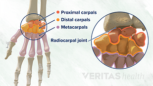 Illustration of proximal, distal, and metacarpal wrist bones.