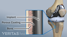 Medical illustration showing the material makeup of a knee replacement. Implant, porous coating, and bone are labeled