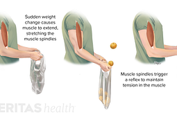 Medical illustration of the ways that muscle spindles in the bicep are stretched and contracted to result in a reflex