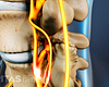 Profile view of lumbar spine with spinal stenosis.