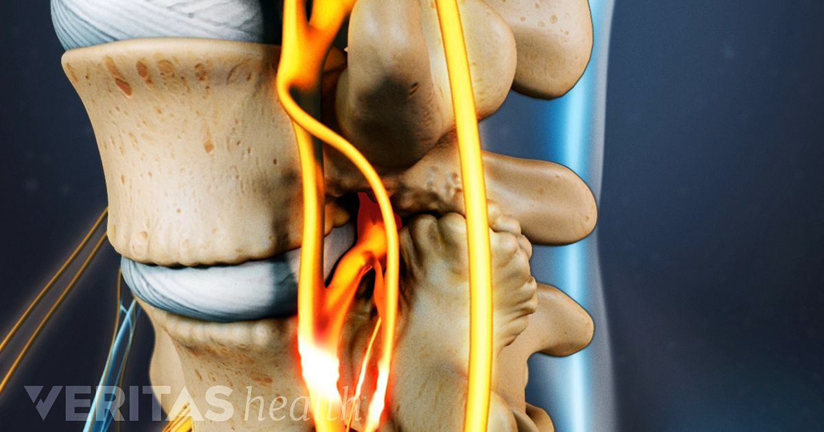 spinal stenose