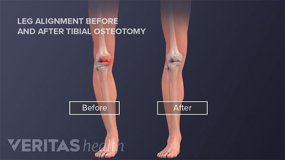 Knock Kneed Or Bow Legged Realignment By Osteotomy