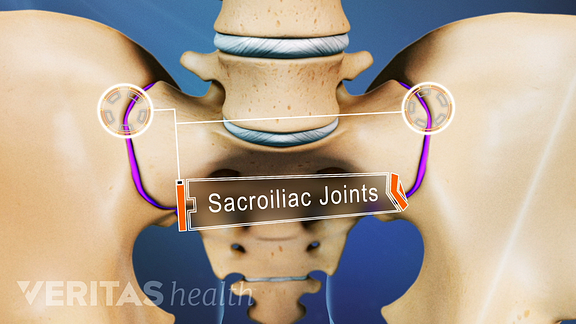 Anterior view of the pelvis labeling the SI Joints.