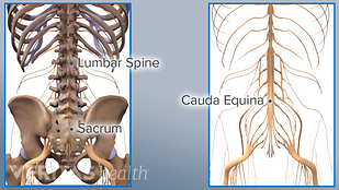 Side by side illustration of lumbar spine and sacrum and cauda equina nerves