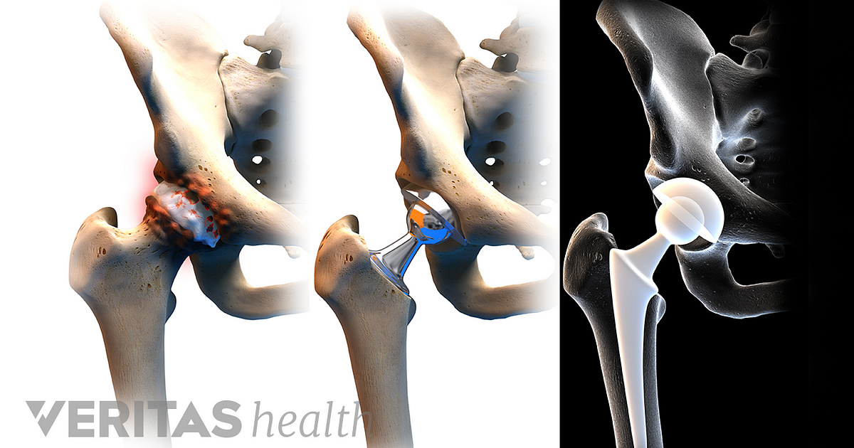 Anterior Hip Replacement Helps Patient Dive Back into Life