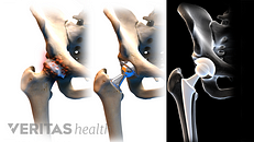 Advantages and Disadvantages of Anterior Hip Replacement