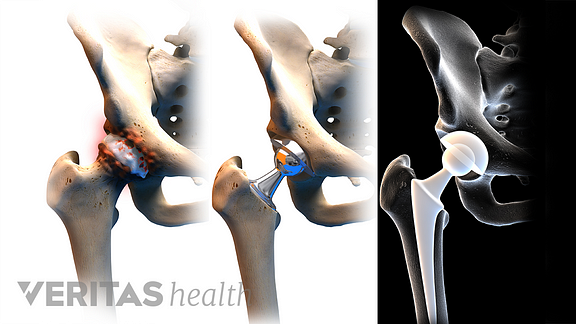 3 stages of a hip replacement, first inset shows an unhealthy hip joint, second inset shows the replaced hip joint, the third inset shows an xray of the hip replacement