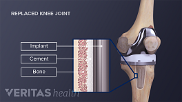 Medical illustration showing the femoral and tibial components of a knee replacement. Implant, cement and bone are labeled on an inset.