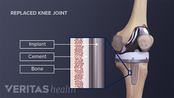 Illustration of uncemented knee arthroplasty