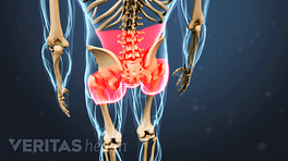 Illustrated skeleton highlighting pain in red in the buttock, lower back, and hips
