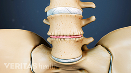 Anterior view of a degenerated disc in the lumbar spine.