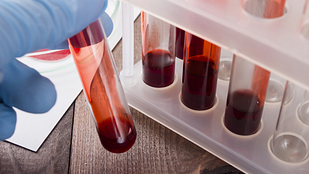 vials of blood for testing