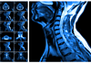 Image of and MRI of the cervical spine and the vertebral discs in different views.