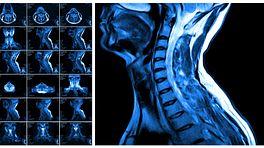 MRI scans of the cervical spine.