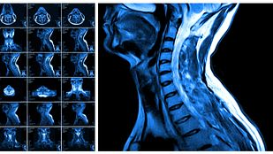 MRI scans of the cervical spine.